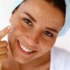 Акне: лечение в домашних условиях. Что такое акне на лице?