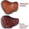 Алкогольный цирроз печени: лечение, признаки, диагностика