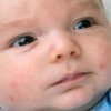 Аллергическая реакция у маленького ребенка