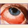 Аллергический конъюнктивит у взрослых, лечение