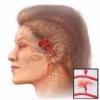 Аневризма сосуда головного мозга