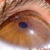 Ангиопатия сосудов сетчатки: признаки и лечение