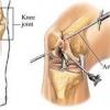Артроскопия суставов