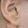 Атерома за ухом: причины появления и лечение