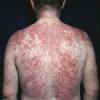 Атопический дерматит лечение детей