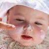 Атопический дерматит в детском возрасте