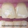 Белые пятна на зубах - почему, лечение