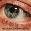 Блефарит глаз: причины, симптомы, лечение в домашних условиях, мазью