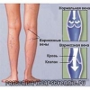 Болезни вен на ногах. Лечение