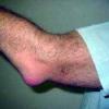 Бурсит локтевого сустава: лечение народными средствами дома