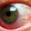 Причины и лечение иридоциклита глаза