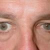 Что такое энофтальм глазного яблока