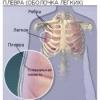 Что такое плеврит легких? Симптомы