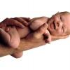 Как лечить молочницу у детей (грудных и новорожденных)