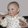 Диатез у грудных детей: лечение детского диатеза