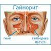 Причины, симптомы и лечение гайморита у детей