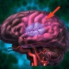 Геморрагический инсульт или внутрицеребральное кровоизлияние