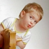 Генетические заболевания синдром Шерешевского-Тернера
