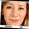 Гиалуроновая кислота: до и после