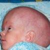 Гидроцефалия гипертензивный синдром у детей