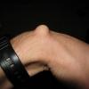 Гигрома кисти. Причины возникновения, симптомы, способы лечения