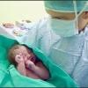 Гипоксия головного мозга у новорожденных