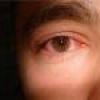 Глазные болезни лечение хронического коньюктивита