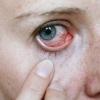 Глазные капли от раздражения и покраснения – дешевые и подороже. Тауфон, актипол, софрадекс: инструкция по применению