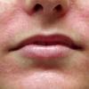 Грибковые заболевания кожи: симптомы и лечение