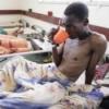 Холера - симптомы заболевания, про возбудитель