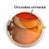 Пигментная дистрофия сетчатки глаза