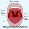 Хронические тонзиллиты - о лечении народными средствами