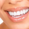 Идеальная улыбка: виниры для зубов