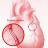 Ишемическая болезнь сердца человека