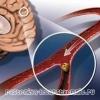 Ишемический инсульт головного мозга, последствия, лечение, причины