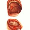 Язвенный стоматит и как его лечить