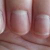 Как лечить грибок ногтей на руках?