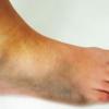 Как лечить ушиб стопы?