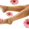 Как лечить варикозное расширение вен на ногах?