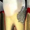 Как образуется налет на зубах