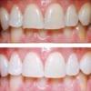 Как отбелить зубы без вреда в домашних условиях?