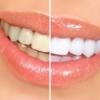 Как отбелить зубы без вреда здоровью и быстро?