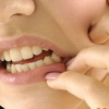 Как режется зуб мудрости