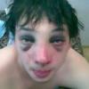 Как убрать синяки под глазами от удара?