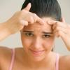 Как убрать жировики на лице?