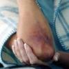 Как выводить синяки от удара, быстро снять ушиб?