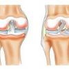 Киста бейкера коленного сустава требует лечения под наблюдением врача