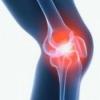 Киста Беккера коленного сустава