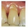 Клиновидный дефект зубов человека