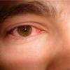 Конъюнктивит глаз. Народное лечение